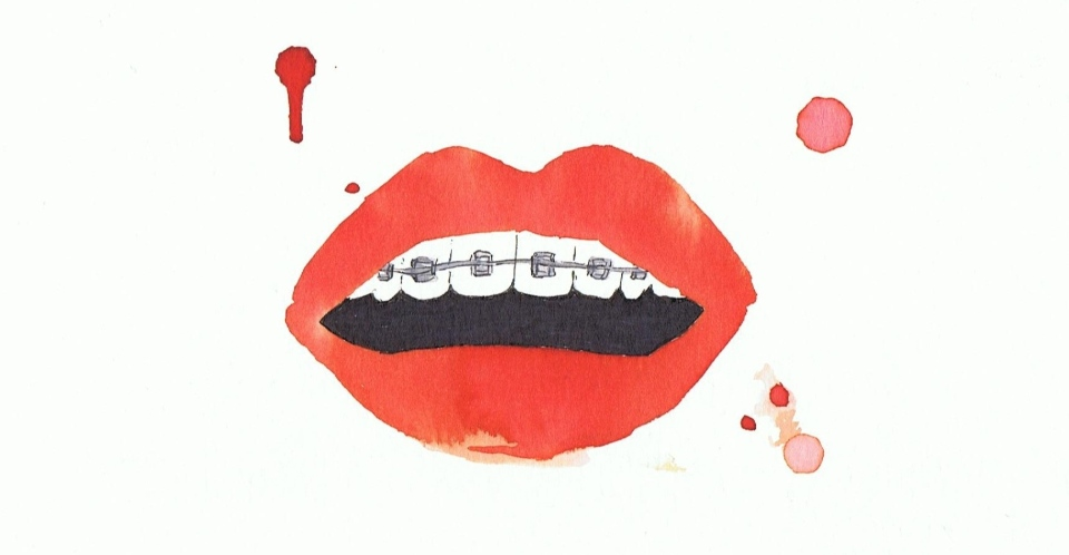 lipstick braces watercolour by littlekokomo.com